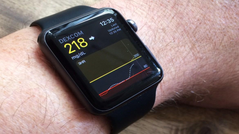 Apple Watch 7 blood glucose