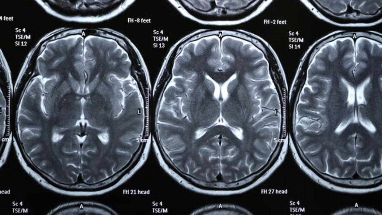 Covid-19 sonrası beyin hasarı ortaya çıktı.