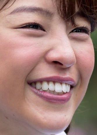 岡副麻希 歯