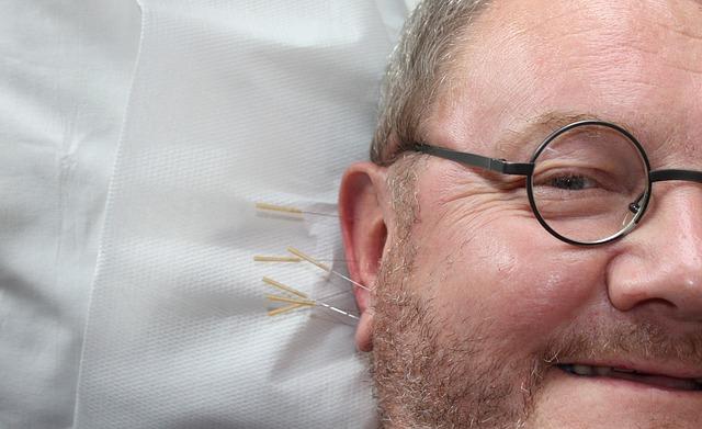 鍼灸治療とはどんな治療?なぜ効くの?