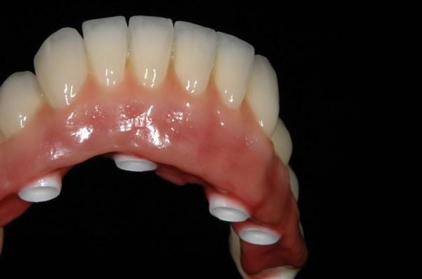 Dental prosthesis Zirconia