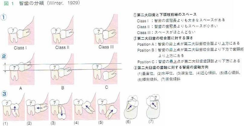 臨床家のための歯科小手術ベーシック 親知らずの抜歯ページ紹介