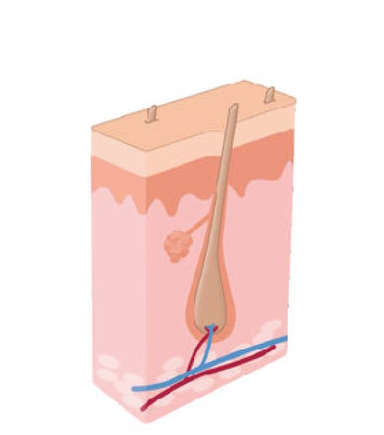 How Laser Hair Removal works step 1