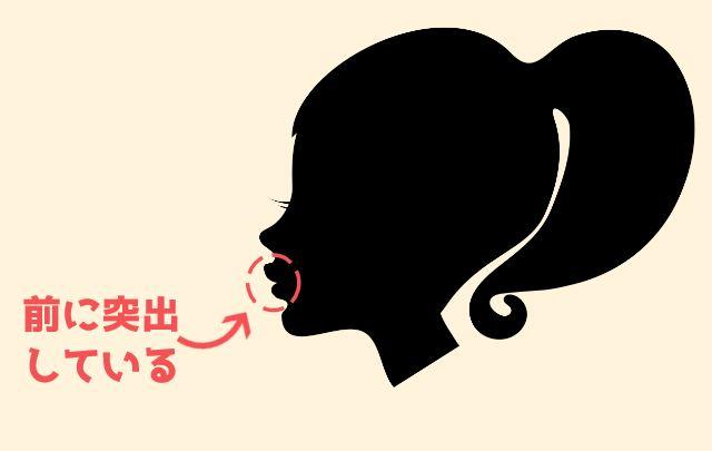 口ゴボの女性