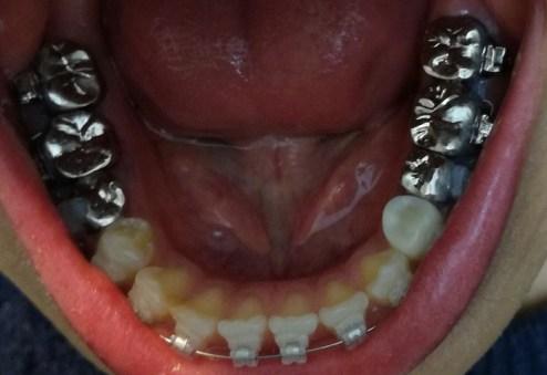 ブラケットつけた下の歯