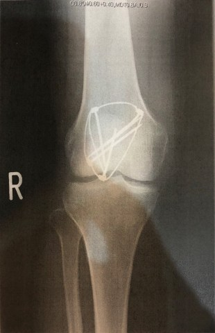 knee-fracture-surgery-1