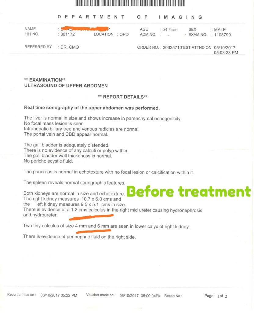 Kidney Stone Treatment Ayurveda | Shiv Shiva Ayurveda