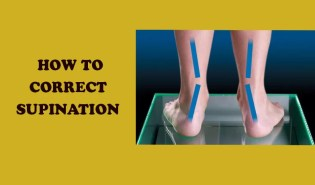 How to correct supination