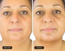 Lõuaaluse hooldus ChinUp mask enne ja pärast hooldust
