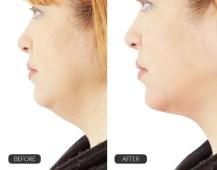 Lõuaaluse hoolduskomplekt ChinUp mask lõualoti vähendamiseks