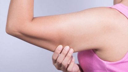 tselluliidihooldus, kiiresti kaalust alla, nädalaga kaalust alla, 3 päevaga kaalust alla, tselluliidiraviga kaalust alla. RF-lifting naha pinguldamine