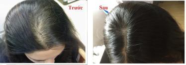 mega hair khách hàng