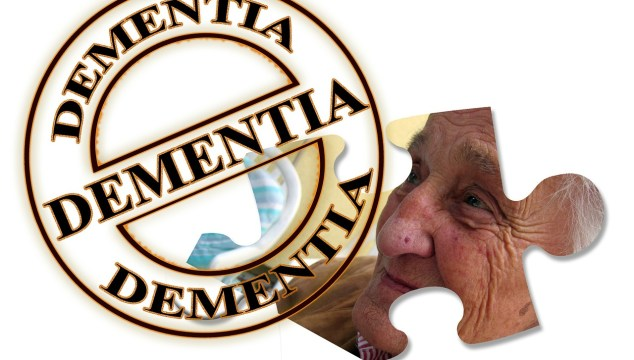 Does Aricept Donepezil Cope with the Treatment of Alzheimer's Disease?