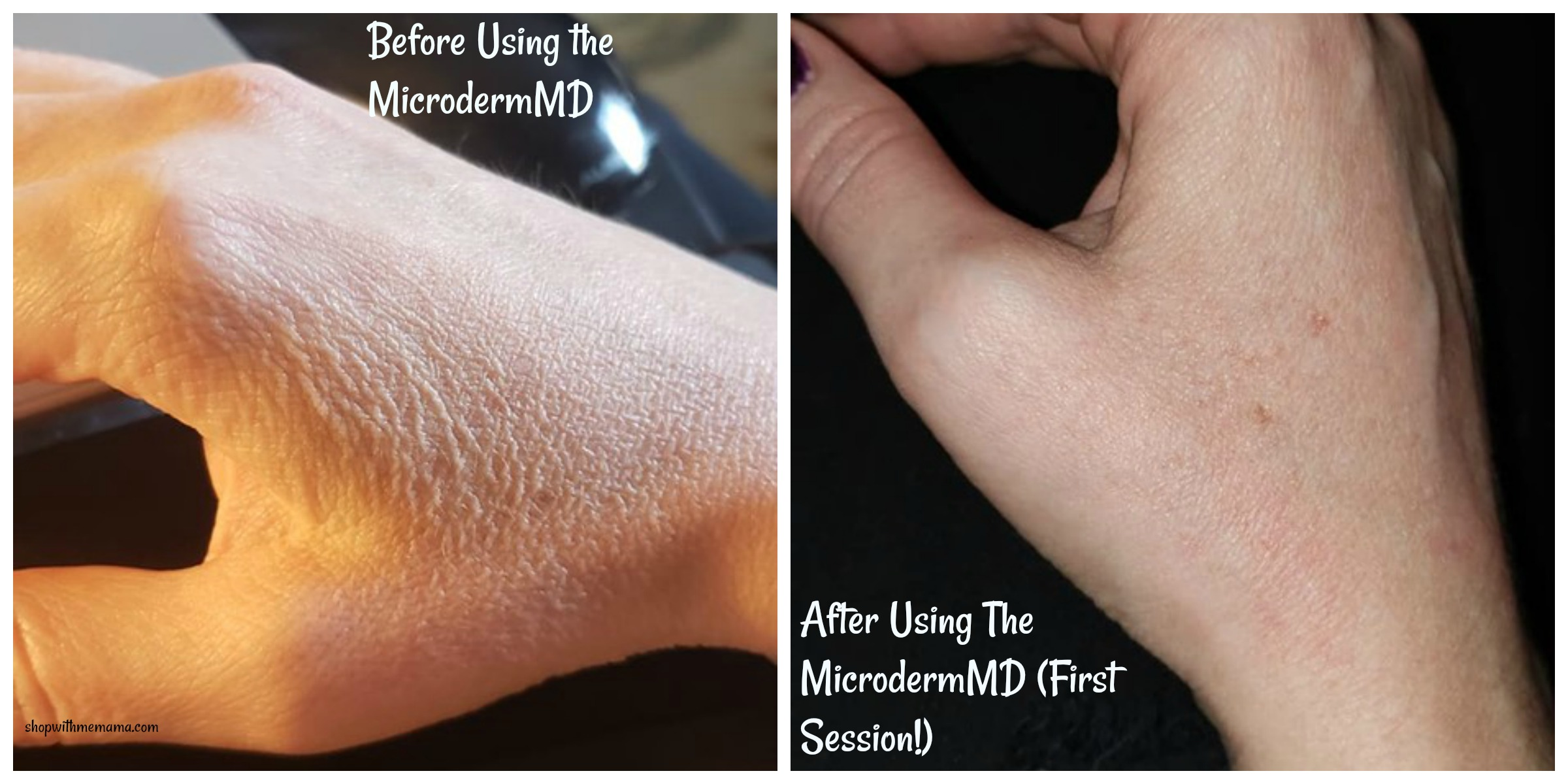before and after pictures of MicrodermMD