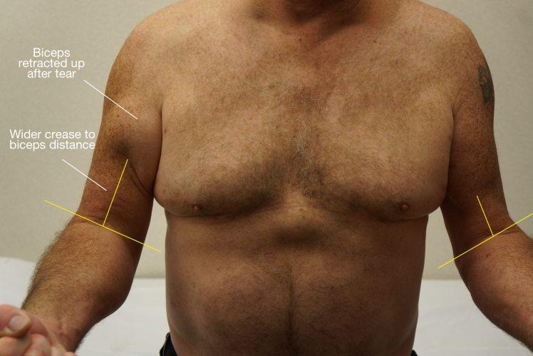 abnormal-biceps-tendon