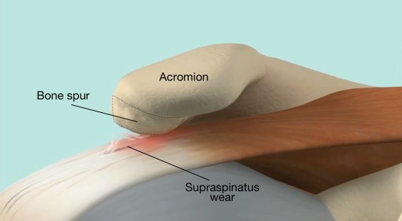 Bone spurs on the undersurface of the acromion may create impingement and lead to cuff wear and tear.jpg