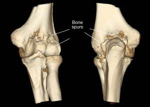 bone-spurs-may-limit-motion