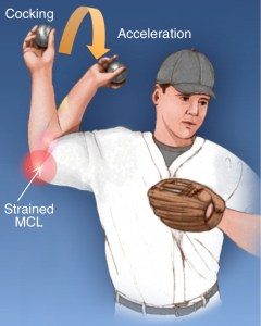 strained-mcl