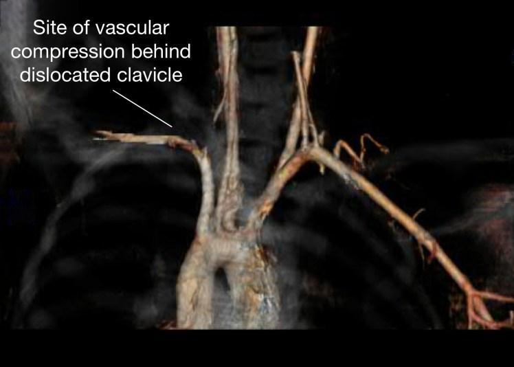 CT angiogram