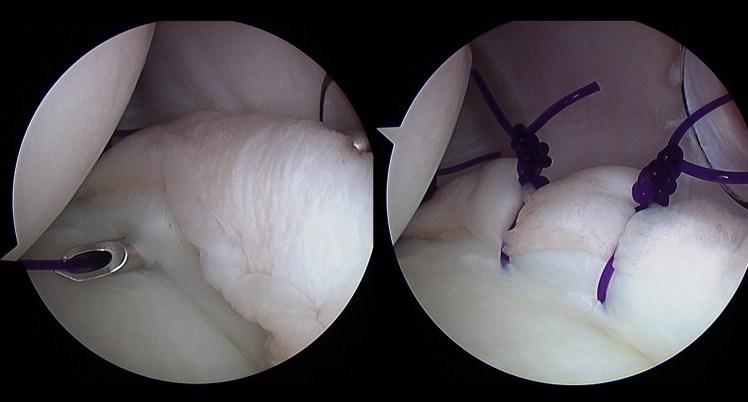 6 Scope capsular plication.jpg