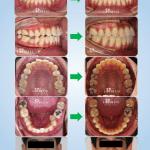 จัดฟันร่วมกับผ่าตัดแก้คางเบี้ยวคางยื่น