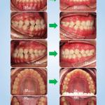 ฟันห่าง ฟันล่างยื่น