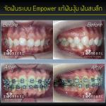 จัดฟัน Empower แก้ฟันงุ้ม ฟันสบลึก จัดรอบ2