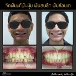 ฟันงุ้ม ฟันสบลึก ฟันซ้อนเก