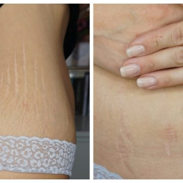 Weight gain stretch marks before using science of skin stretch mark solution