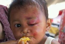 Bocah Ini Jadi Korban Gempa Lombok, ACT : Jangan Menangis lagi Muhammaf Fariq Firdaus