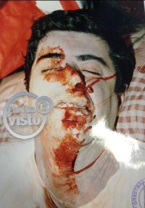 Attilio Manca. Secondo la Procura di Viterbo a distruggere il suo volto è stata la caduta accidentale sul telecomando.