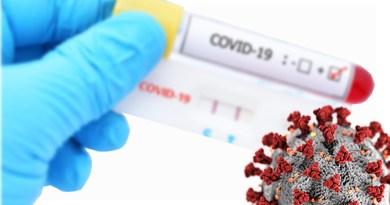 ¿Dónde realizar el PCR en Orlando?