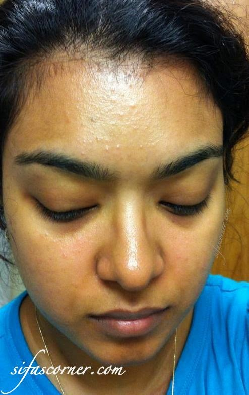 """What I learned from """"Acne Face Mapping"""" about my current Breakouts!"""