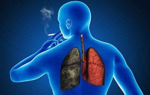 népi gyógymódok a tüdőben történő dohányzáshoz kilencedik leszokni a dohányzásról