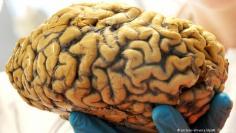 أمراض الدماغ الناتجة عن ممارسة الرياضة