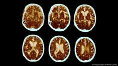 الدماغ و الاعصاب –هل يمكن الوقاية من مرض الزهايمر؟