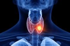 أمراض الغدد والسكري – النظام الغذائي الصحي للمصاب بخمول الغدة الدرقية أو فرط نشاطها