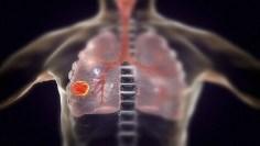 السرطان – علامات غير معروفة لمرض سرطان الرئة