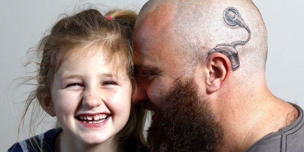 Charlotte Campbell age 6 with her dad Alistair who had a cochlear implant tattooed on his head to support Charlotte who is deaf. Photo / Dean Purcell