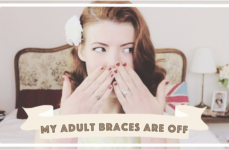 Adult Braces: Taking Braces Off (9 Month Update)