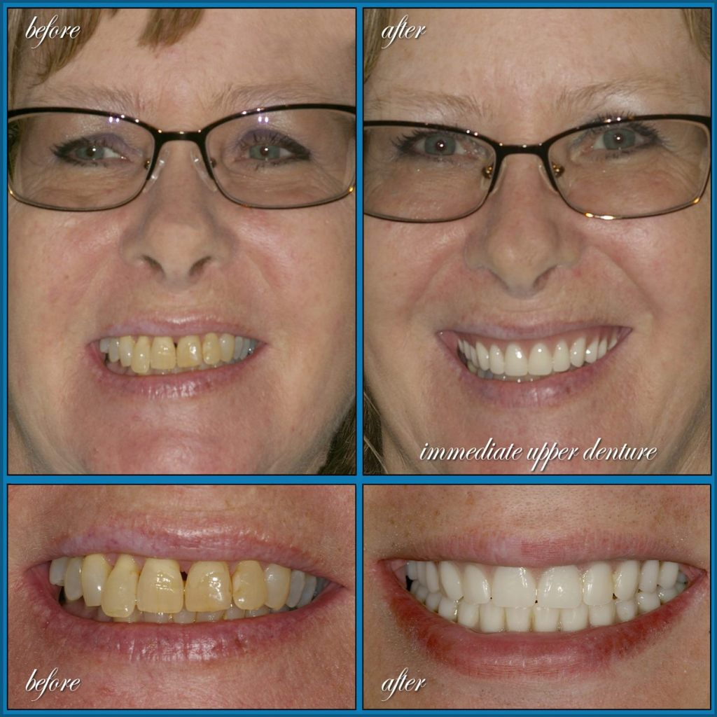 before and after - dentures case
