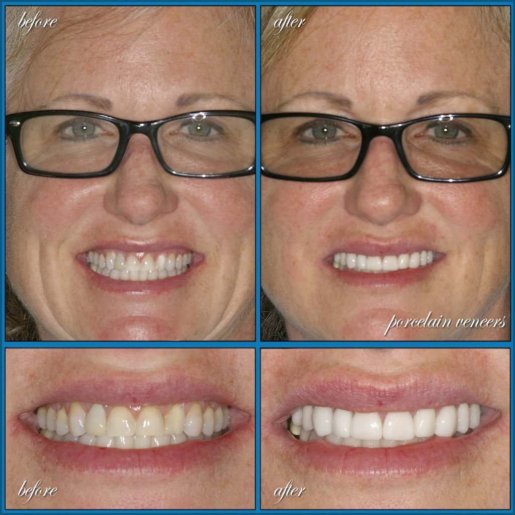 before and after with dental veneers