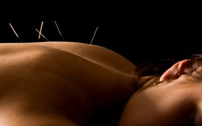 Acupuncture for Chronic and Acute Inflammation