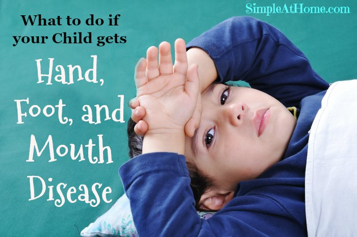What to do if your child gets hand foot and mouth