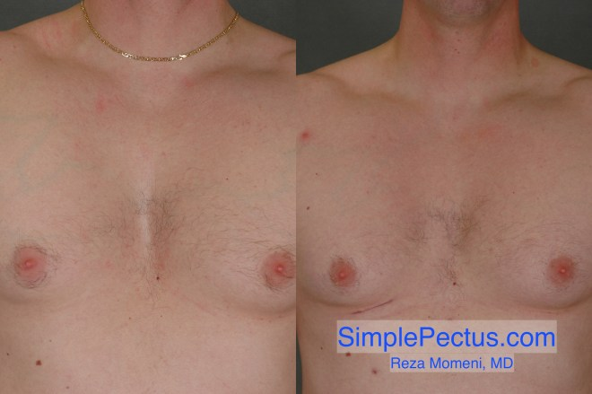 Before & After photos of a SIMPLE Pectus Repair of man in his 40s