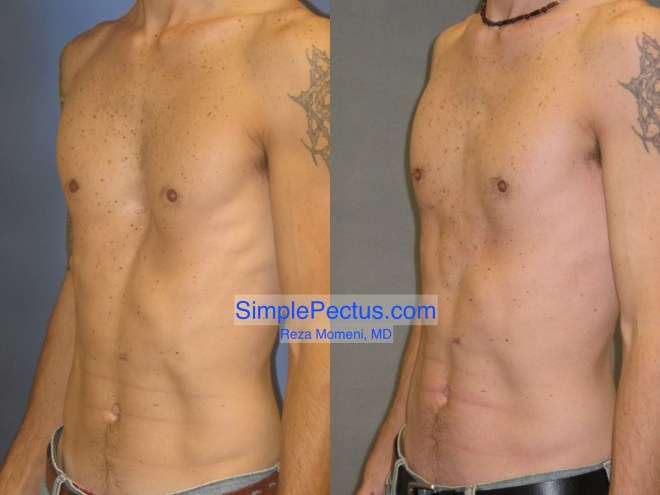 Before & After photos of a SIMPLE Pectus Repair of a thin athletic man in his 20s