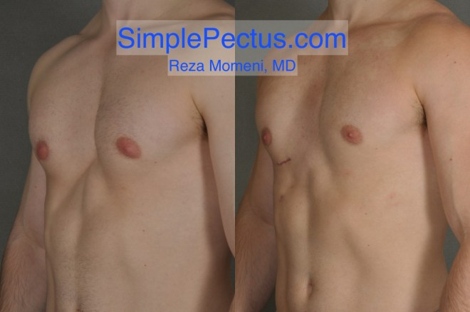 Before & After photos of a SIMPLE Pectus Repair of young male in his 20s