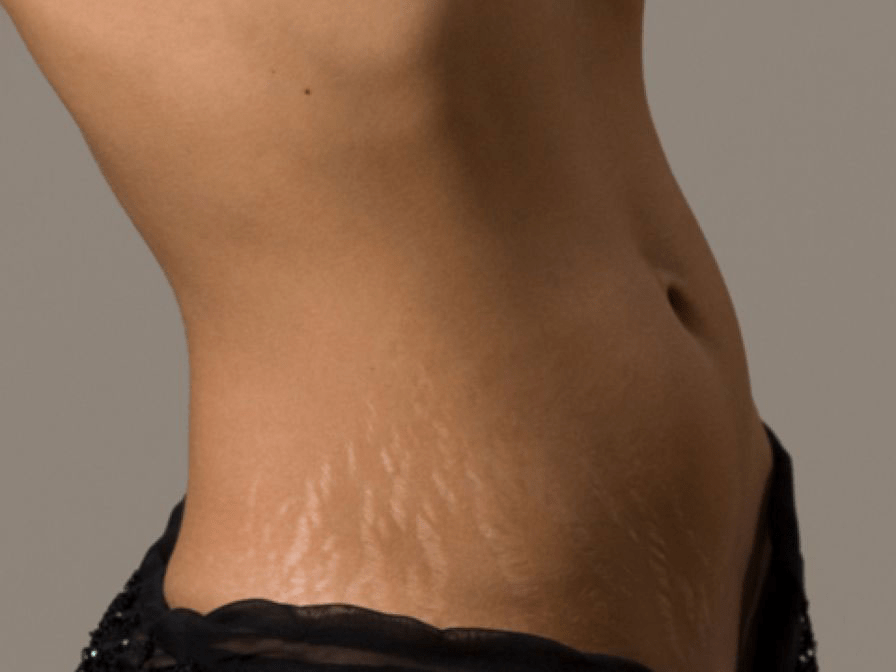 Best Stretch Mark Removal Creams 2017 Reviews Guide