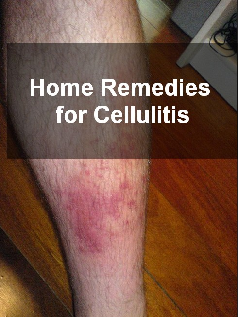 Home Remedies for Cellulitis