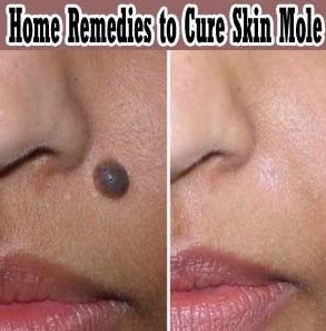home remdies to cure moles